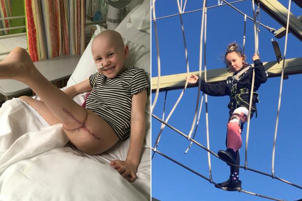 女孩截肢后把腿反着接以战胜骨癌